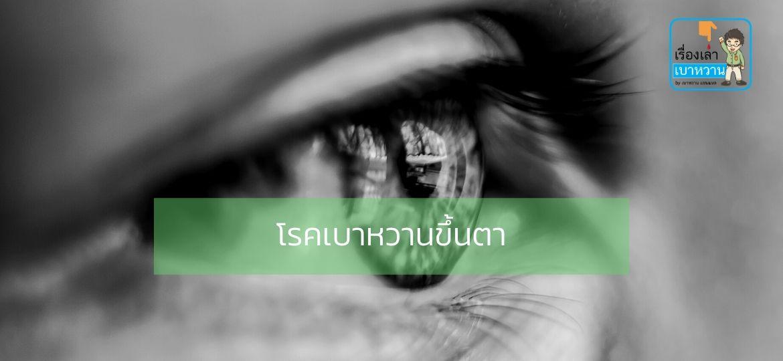 โรคเบาหวานขึ้นตา (Diabetic Retinopathy) อาการแทรกซ้อนของโรคเบาหวาน