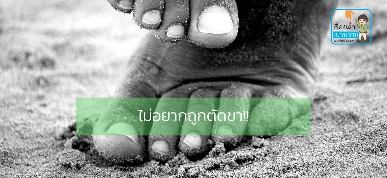 วิธีการดูแลเท้าในผู้ป่วยเบาหวาน เพื่อป้องกันการเกิดแผลจนทำให้ต้องถูกตัดขา